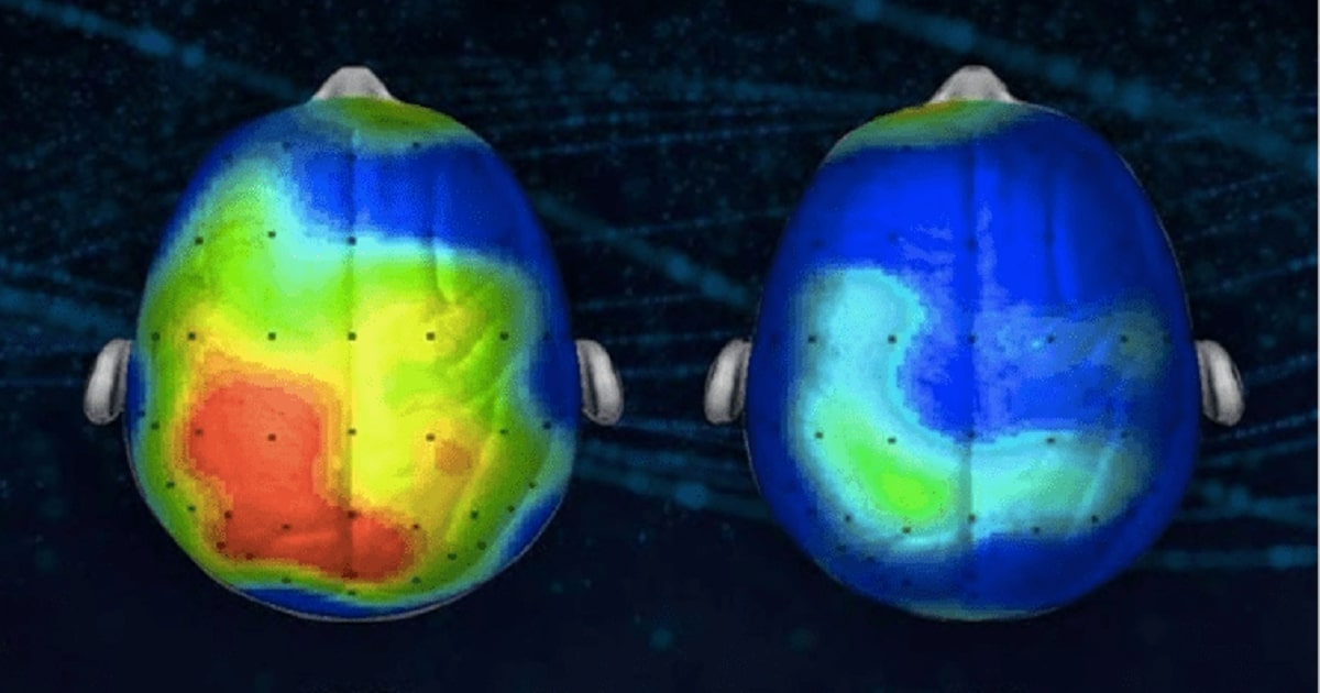 Brain-Before-After-Meditation_1200x630